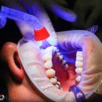 Złe postępowanie odżywiania się to większe niedostatki w jamie ustnej oraz dodatkowo ich utratę